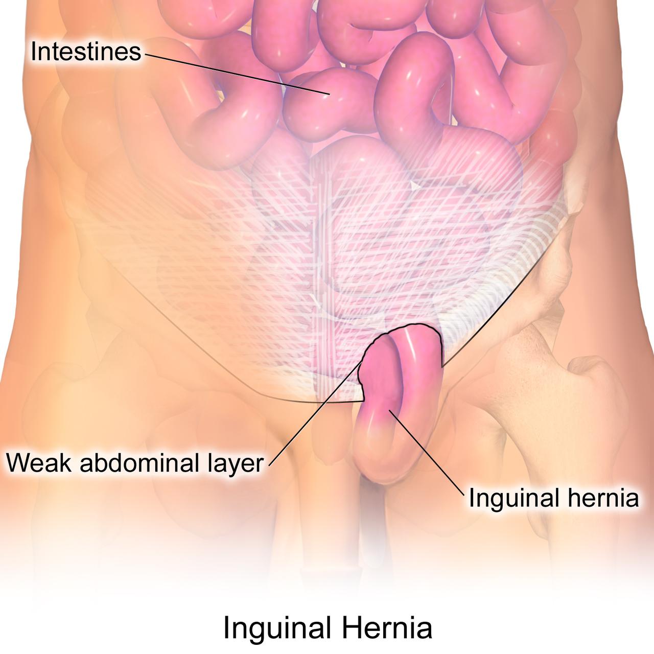 Gastrointestinal Surgery Inguinal Hernia