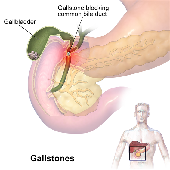 Gastrointestinal surgery gallstones gallstones can cause sudden pain in the upper right abdomen this pain called a gallbladder attack or biliary colic occurs when gallstones block the ducts ccuart Image collections