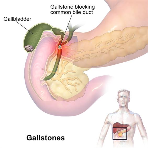 Gastrointestinal Surgery Gallstones